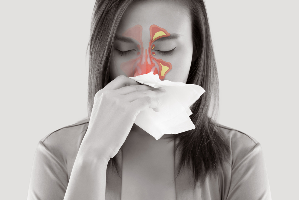 Sinusitis Treatment with Balloon Sinuplasty